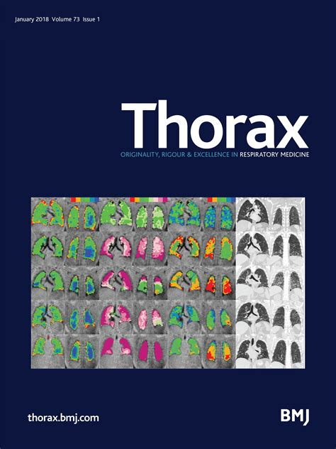 Research Letter Thorax Thorax One Of The World S Leading Respiratory Medicine Journals Publishing Clinical And