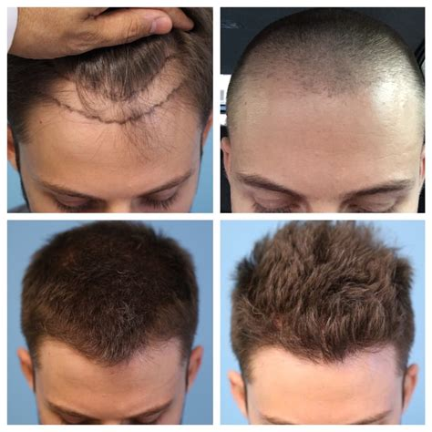 pictures of hair growth month by month after chemotherapy by people progression from before hair transplant all the way up to