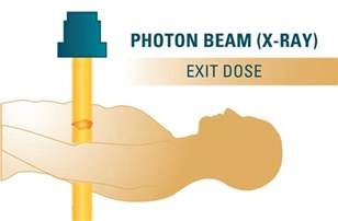 Proton Beam Radiation Side Effects Breast Cancer How Proton Therapy Is Protecting Hearts
