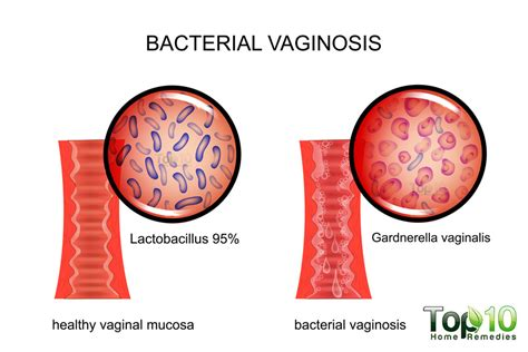 bacterial vaginosis treatment