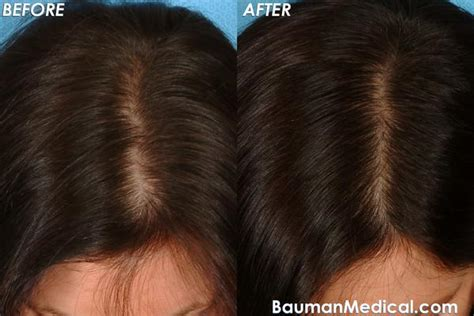 before and after photos alopecia antrogenetic women cure for androgenitic alopecia in women doctor answers