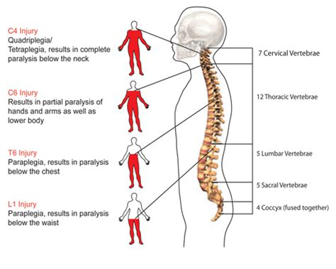 spinal cord injury diagram gallery for gt anatomy and physiology of the spinal cord