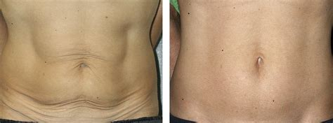12 Ways To Tighten Your Stomach After A Baby by Thermage For Non Surgical Lifts And To Tighten