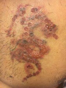 tattoo removal blisters aspects of laser removal the skin structure