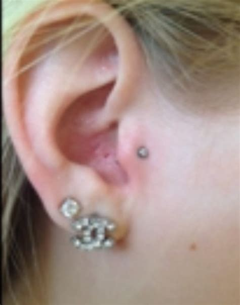 Infected Tragus Piercing | tragus piercing cost pain healing time infection