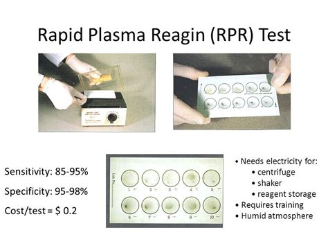 rpr test overview of syphilis rapid syphilis testing ppt