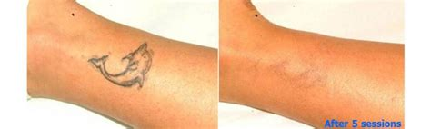 tattoo removal places home the tattoo removal placethe tattoo removal place