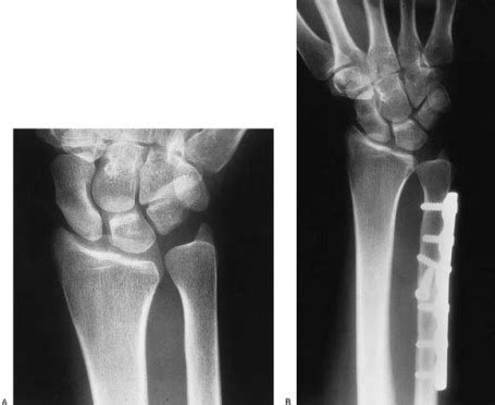 Tokotab Correction Uchio Uc 5023 comparison of ulnar shortening osteotomy and the wafer resection procedure as treatment for