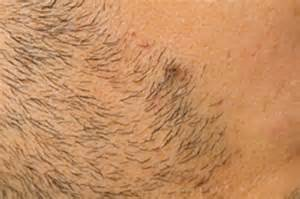 ingrown hair bumps on area ingrown hairs and razor bumps
