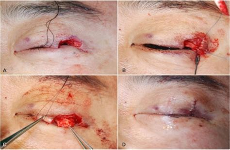 what is frozen section biopsy mass excision and reconstruction of the defect a com