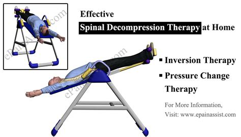 spinal decompression at home therapies devices exercises