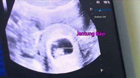 Cytotec Untuk Hamil 2 Bulan Usg Untuk Pemeriksaan Kehamilan 2 Bulan Dokter Oz