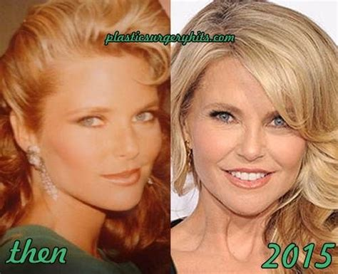 Christie Brinkley Gets Emergency Surgery by 25 Best Christie Brinkley Plastic Surgery Ideas On