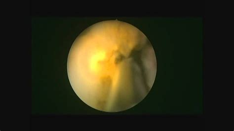 green light laser prostatectomy ktp laser turp green light laser prostatectomy youtube