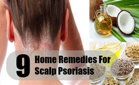 psoriasis scalp ears treatment driverlayer search engine