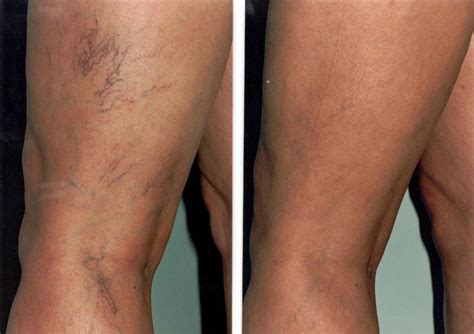 spider veins on the legs natural treatments