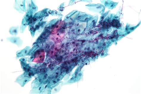pap test candida file candida pap 1 jpg wikimedia commons
