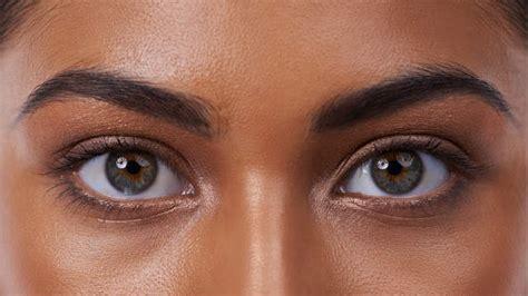 the eyes of the how to get rid of darn under eyes dark circles senhora