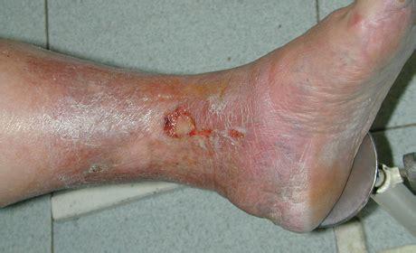 vene varicose interne le ulcere degli arti inferiori circolazione venosa