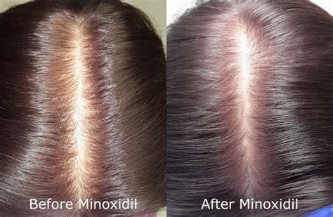 rogaine for women before and after photos can rogaine minoxidil make hair loss worse limmer htc