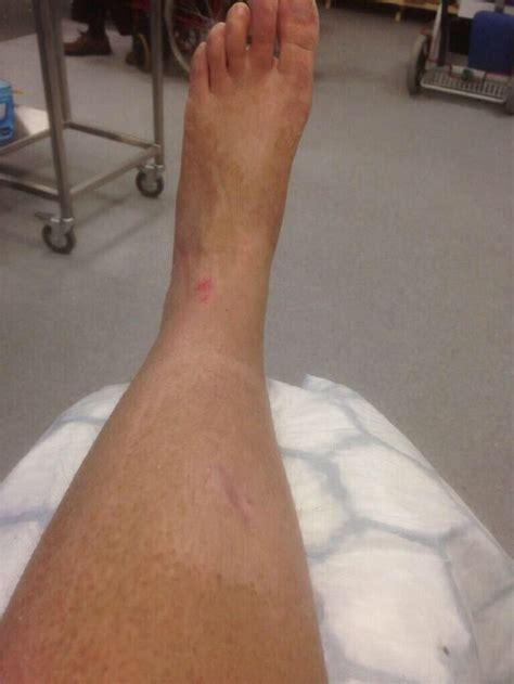 leg sprain broken sprain foot sprain broken ankle broken foot broken leg pin