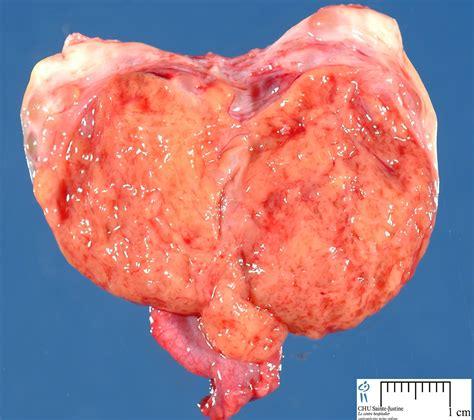 tumor pictures tumor images