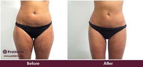 Did Banks Liposuction by Non Surgical Thigh Lipo For Reduction Prettislim
