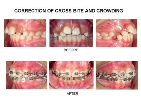 Alat Perapi Gigi Behel Merapikan Gigi Teeth Retainer Dewasa Diskon orthodontic treatment dr prabhuraj consulting