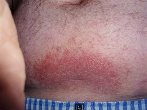 redness around pubic hair help tiny red bump s in pubic area discussion on topix