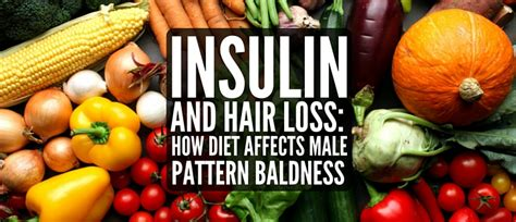 male pattern hair loss diet insulin and hair loss how diet causes androgenetic