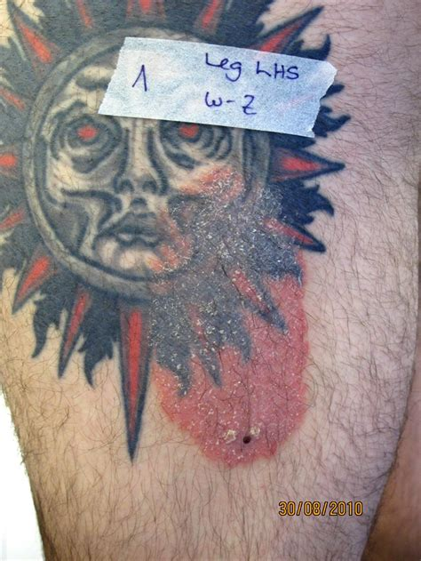 tattoo psoriasis pictures psoriasis hervorgerufen durch ein tattoo psoriasis netz
