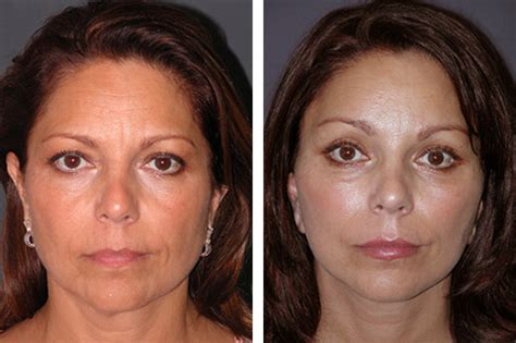 mini face lift new york facial plastic surgery short scar facelift photos