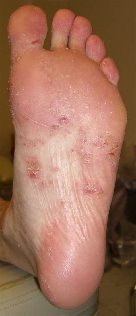 powered by mybb infections in the back sweaty feet fungal infections www pixshark com images