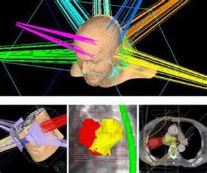 Oncology South External Beam Radiation Ella Milbank Foshay Cancer