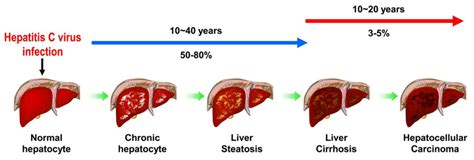 Detoxing Liver Heptiitis C by Collaboration To Develop A Cheap Hepatitis C Vaccine