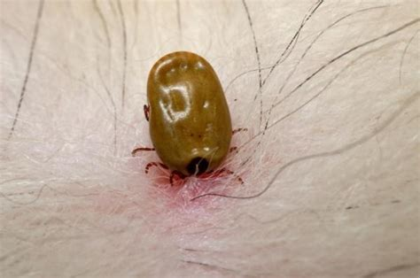 tick borne illness in dogs influence of climate warming on the increase in tick borne diseases sciencedaily
