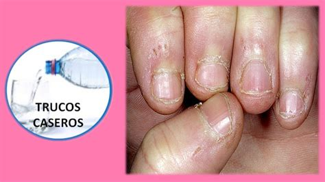 porque salen hongos en las u as como prevenir y evitar los padrastros de los dedos
