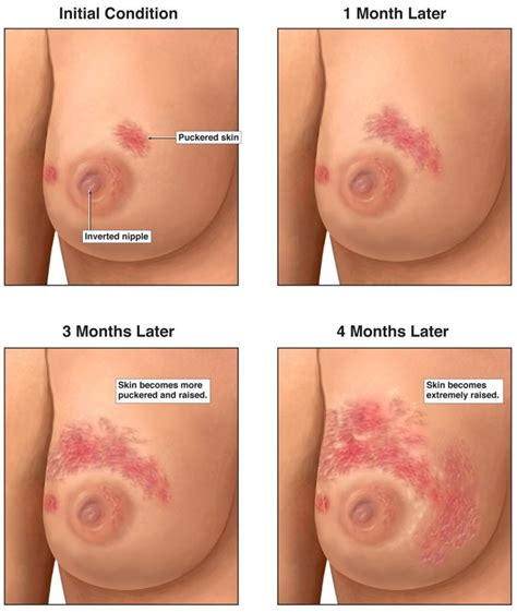 infected tattoo while breastfeeding inflammatory breast cancer is rare while breastfeeding but