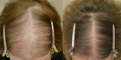 rogaine before and after women photo finasteride and topical minoxidil females before after