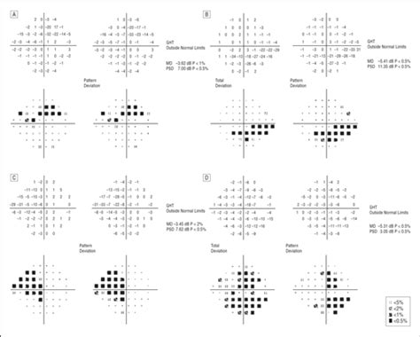 psd pattern standard deviation glaucoma with early visual field loss affecting both