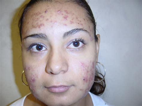 www cara eliminar manchas de acn 233