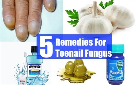 5 remedies for toenail fungus treatments cure