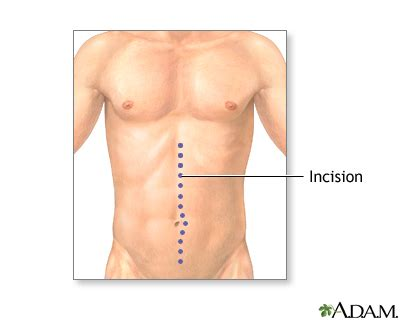swelling below c section incision inflammatory bowel disease series penn state hershey