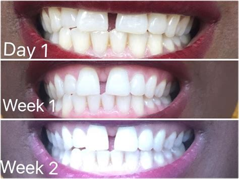 carbon coco teeth whitening review    wor