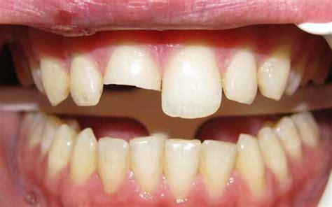 repair  broken front tooth