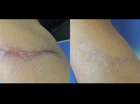 best treatment for surgical scars bakersfield scar removal treatment of scars from surgery