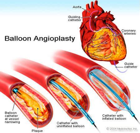 coronary angioplasty with or without stent implantation angioplasty stents facts on complications and recovery