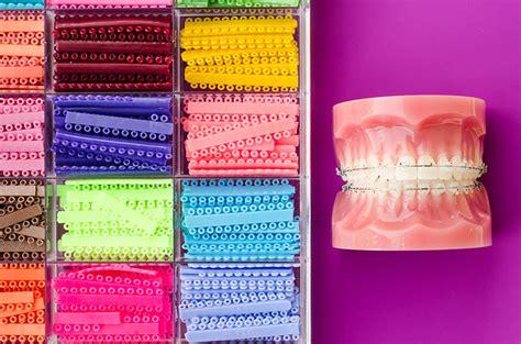 rubber band colors for braces about rubber bands for braces biermann orthodontics