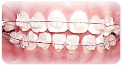 Pemutihan Gigi Di Surabaya praktek dokter gigi agus wiyandono macam macam bracket