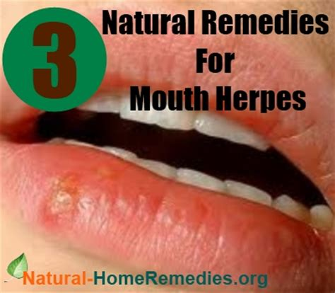 remedies for herpes treatment how to get
